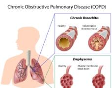 呼吸系统图片